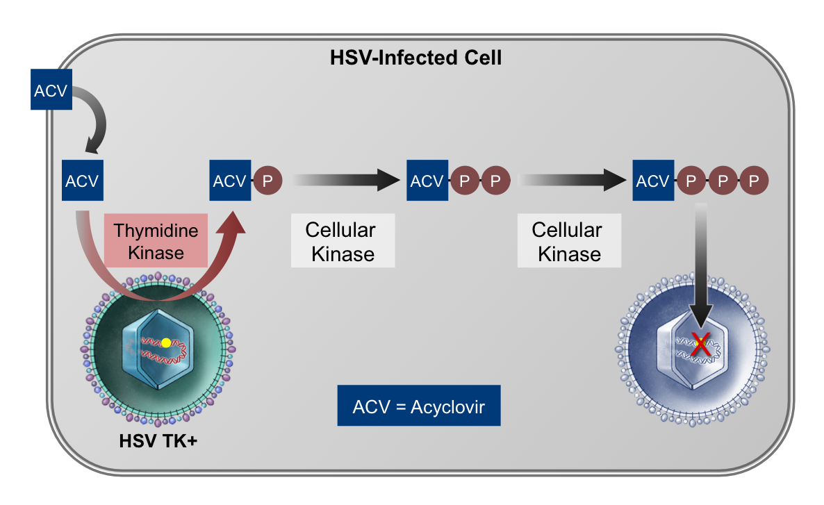 As acyclovir enters cells infected with HSV, it is initially activated by the viral thymidine kinase (TK); the second and third phosphorylation steps occur through cellular kinases.  The active drug acyclovir triphosphate then inhibits HSV DNA replication.<div>Illustration by David H. Spach, MD</div>