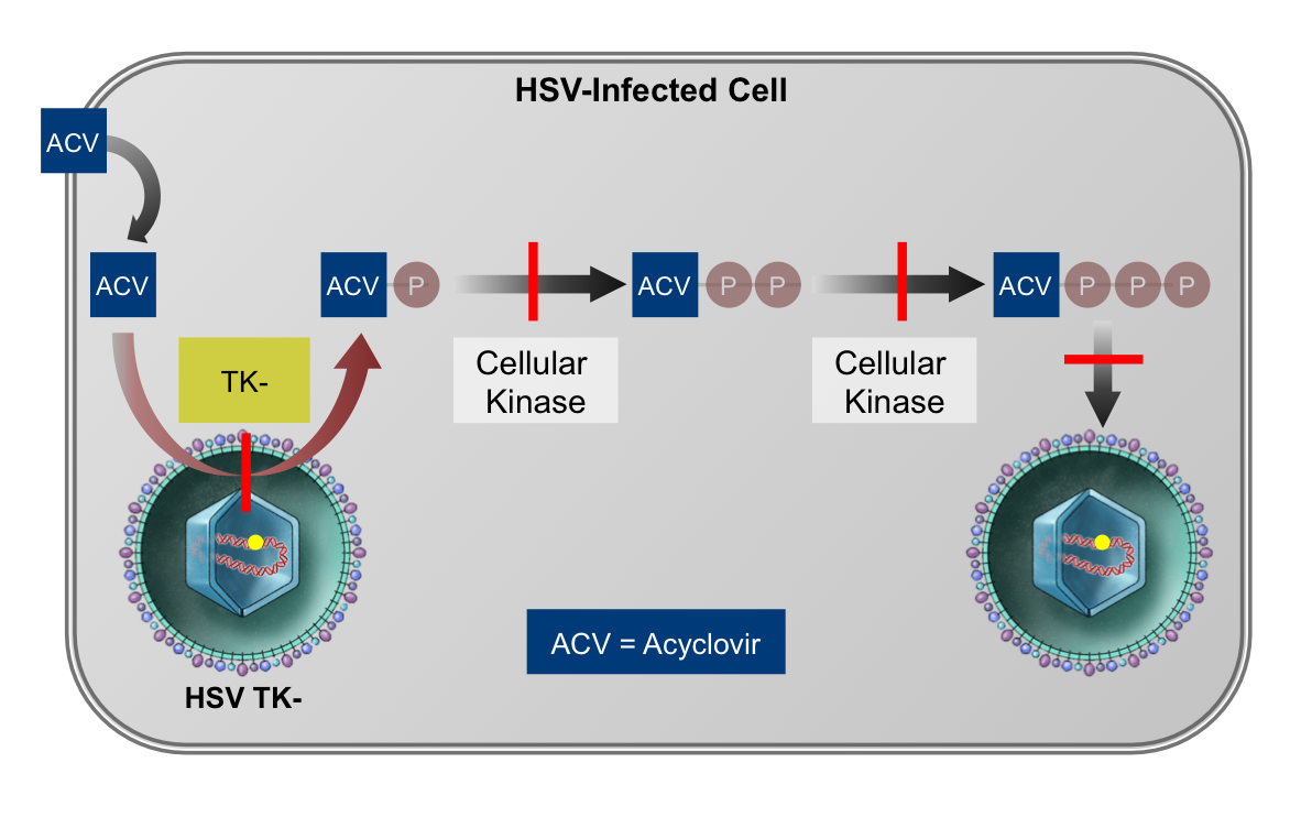 Most acyclovir-resistant HSV occurs via the mechanism of decreased or absent production of thymidine kinase (TK) by HSV.  The strains are referred to as HSV TK- mutants. With inadequate production of TK, acyclovir does not undergo the mandatory initial phosphorylation step and HSV replication proceeds uninhibited.<div>Illustration by David H. Spach, MD</div>
