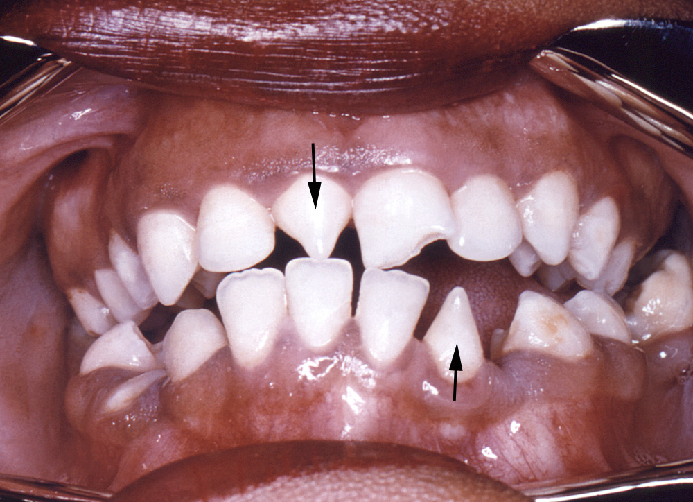 This photograph demonstrates the dentition within the oral cavity of a young African-American female patient with a history of congenital syphilis. The patient has a triangular-shaped deformity of an upper central incisor (top arrow) and a lower lateral incisor (lower arrow). These deformities are known as Hutchinson incisors and are caused by congenital syphilitic infection.<div>Source: Centers for Disease Control and Prevention Public Health Image Library (CDCRobert E. Sumpter, 1967).</div>