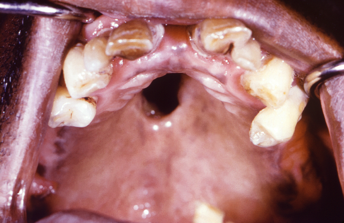 This photograph shows an intraoral view of the hard palate of a patient with congenital syphilis. The  patient's hard palate perforation was caused by congenital syphilis, which also perforated the nasal cavity.<div>Photograph credit: Centers for Disease Control and Prevention Public Health Image Library (CDC/Robert E. Sumpter, 1967).</div>