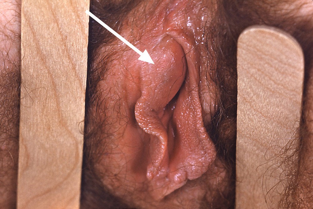 Photograph showing right labial Bartholin gland abscess (white arrow) caused by <em>Neisseria gonorrhoeae</em>.<div>Source: Centers for Disease Control and Prevention Public Health Image Library (Susan Lindsley, 1973).</div>