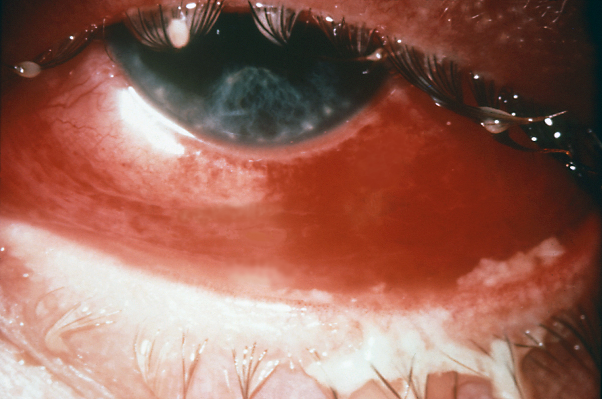 This photograph illustrates a severe case of gonococcal conjunctivitis.  Note the purulent material on the upper and lower lids.<div>Source: Centers for Disease Control and Prevention Public Health Image Library. CDC, 1977.</div>