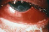 This photograph illustrates a severe case of gonococcal conjunctivitis.  Note the purulent material on the upper and lower lids.