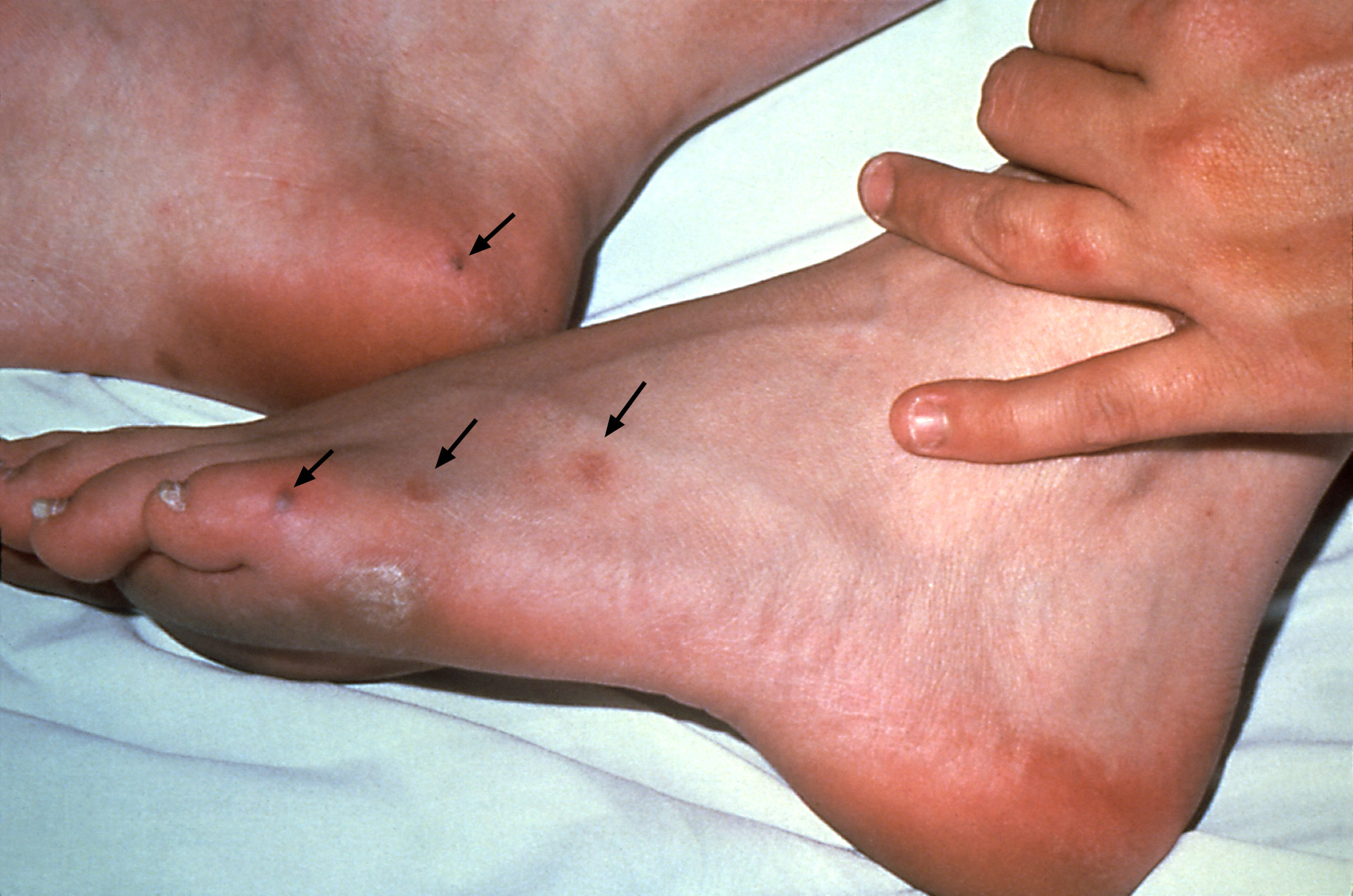 This patient had disseminated gonococcal infection including multiple cutaneous lesions on the feet (black arrows).<div>Source: Centers for Disease Control and Prevention Public Health Image Library (J. Pledger and Dr. S. E. Thompson, VDCD, 1979).</div>