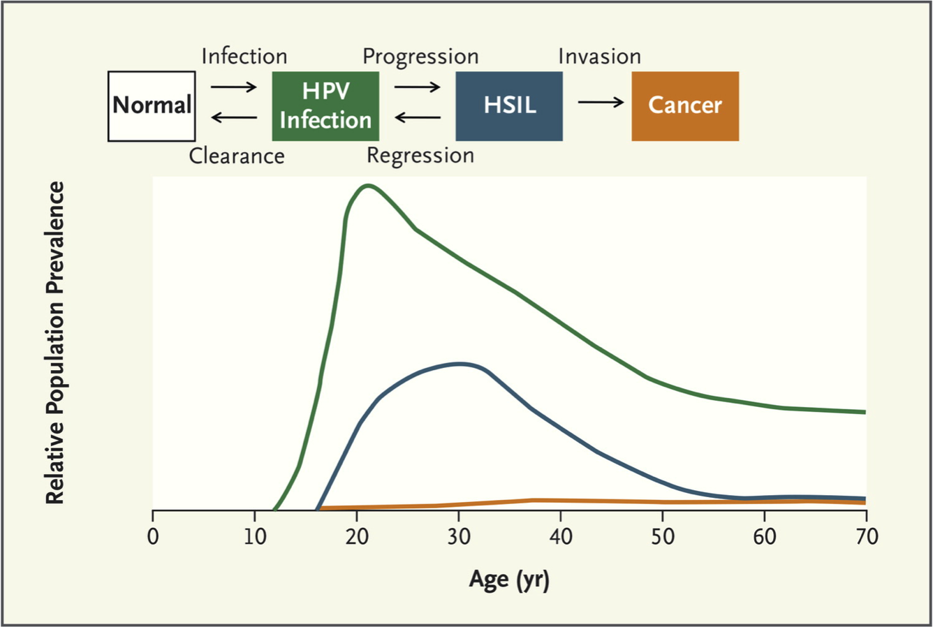 Natural history of HPV infection and cancer as shown at top.  The bottom graph shows the correlation of the stages during the natural history with age. As shown in the graph, the age of peak high-grade intraepithelial lesion (HSIL) or precancer occurs 5 to 10 years after HPV infection.<div>Source: Schiffman M, Solomon D. Clinical practice. Cervical-cancer screening with human papillomavirus and cytologic cotesting. N Engl J Med. 2013;369:2324-31.