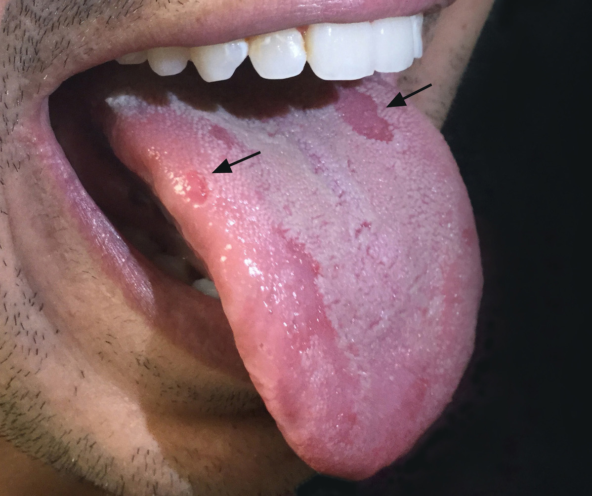 This patient with secondary syphilis had multiple shallow ulcerations on the tongue (black arrows).<div>Source: photograph from Negusse Ocbamichael, PA; Public Health—Seattle & King County STD Clinic</div>