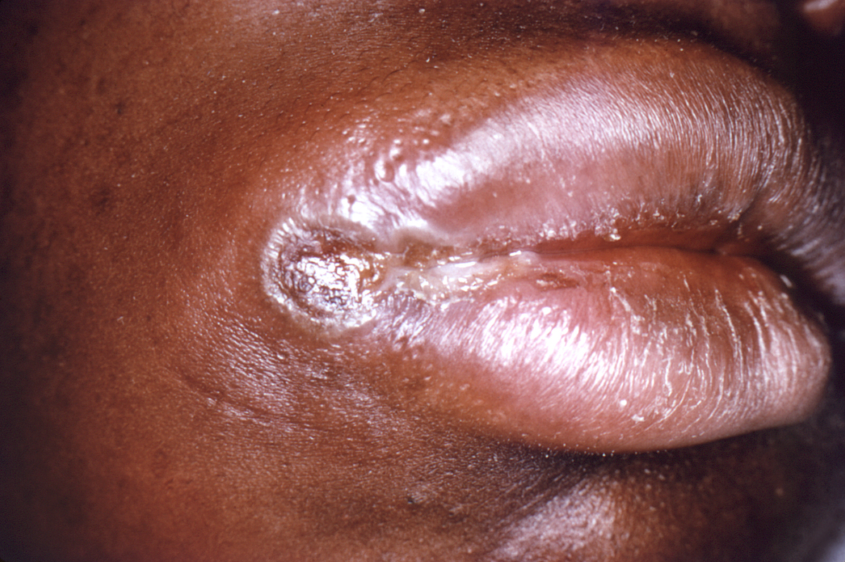 This woman with primary syphilis developed an oral chancre at the right corner of her mouth. Syphilitic chancres are typically round, firm, and painless.<div>Photograph credit: Centers for Disease Control and Prevention Public Health Image Library (Robert E. Sumpter, 1967).</div>