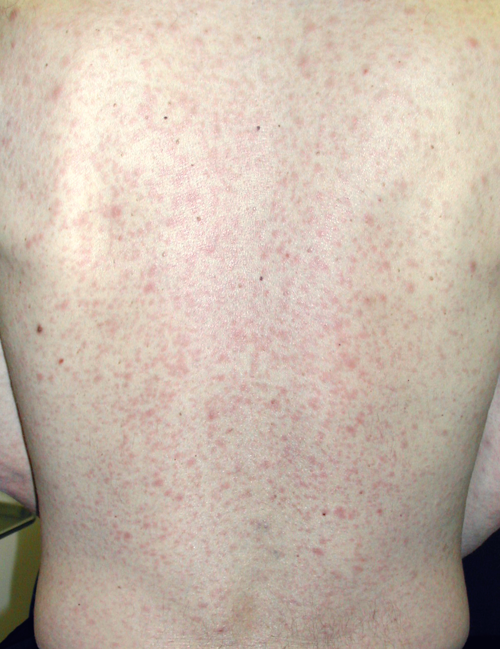 This patient with secondary syphilis developed a diffuse erythematous macular rash prominent on the chest and back.<div>Photograph credit: David H. Spach, MD</div>