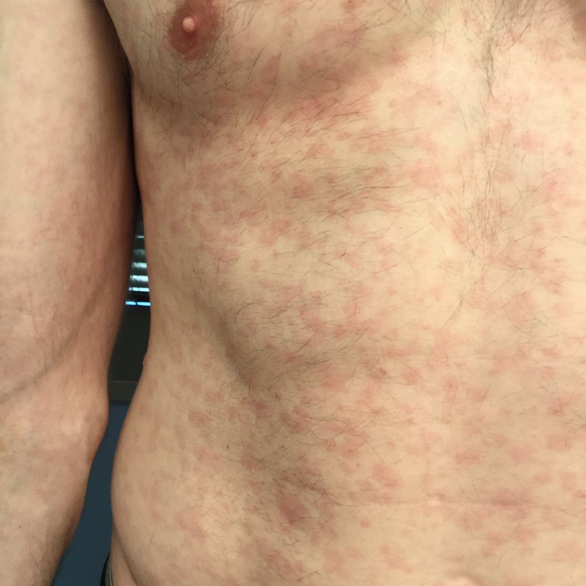 This patient with secondary syphilis developed a diffuse erythematous macular rash prominent on the chest, back, palms, and soles.<div>Photograph credit: Negusse Ocbamichael, PA; Public Health—Seattle & King County STD Clinic</div>
