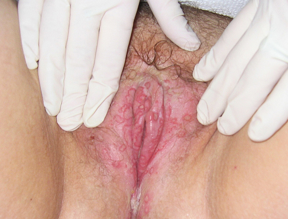 This photograph shows characteristic findings consistent with primary genital HSV infection.  These findings include bilateral involvement and extensive number of lesions.<div>Source: University of Washington Virology Research Clinic</div>