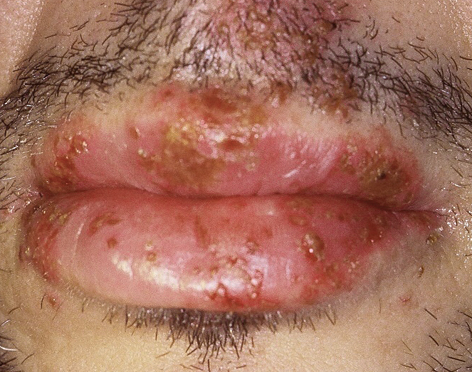 This photograph shows characteristic finds with primary oral HSV—bilateral involvement and large number of lesions.<div>Source: University of Washington Virology Research Clinic</div>