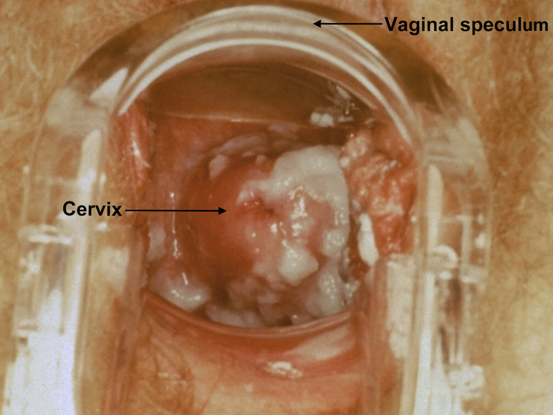 Discharge vaginal diseases causing