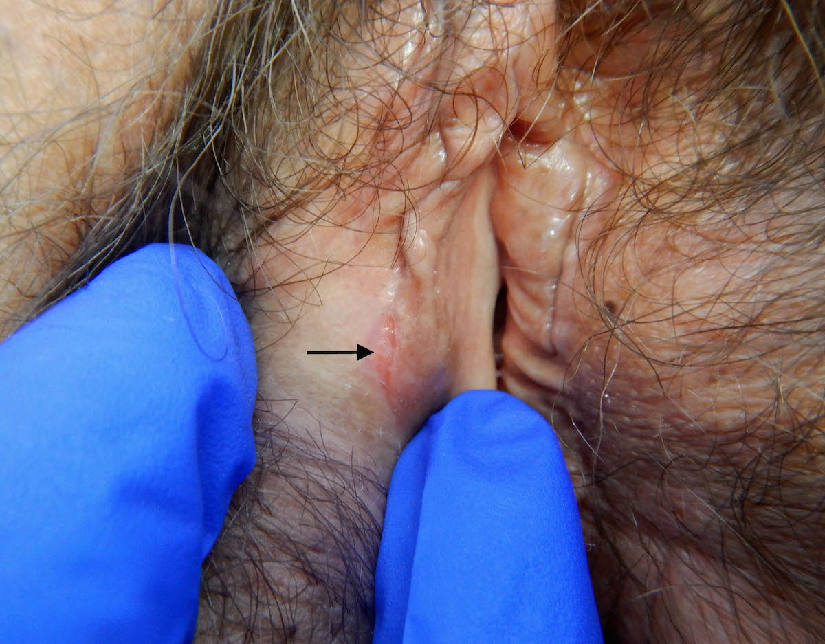 This photograph shows subtle HSV lesion that lesions may develop as minimally symptomatic or asymptomatic fissures or linear lesions.<div>Source: University of Washington Virology Research Clinic</div>